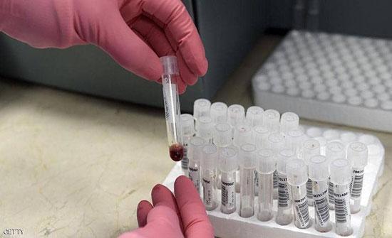 لأول مرة.. أطباء يزيلون فيروس الإيدز من جينات حيّة