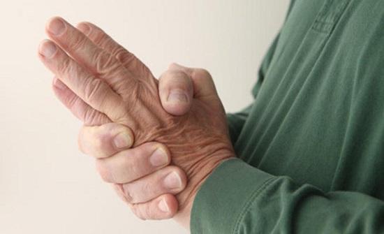 دراسة: تنميل اليد مؤشر على ارتفاع مستوى الكولسترول في الدم