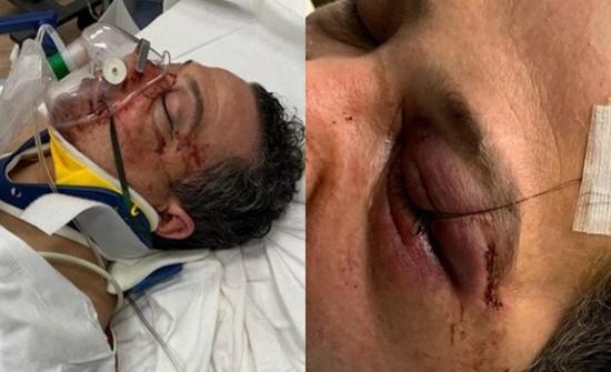 اعتقال امرأة شاركت في هجوم وحشي على عائلة عربية في نيويورك- صور