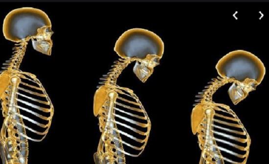 مؤتمر يدعو إلى الكشف المبكر عن أمراض وتشوهات العظام