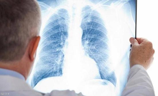 هذه الأغذية تحمي من سرطان الرئة.. حتى المدخنين