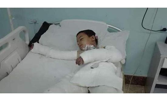 مأساة.. وفاة طفل مصري بعد شهر من واقعة التنمر عليه