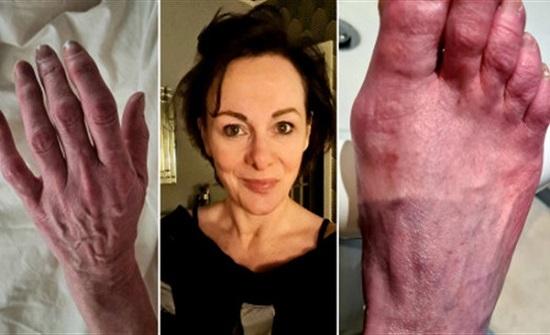 حروق إشعاعية.. أعراض مرعبة تظهر على مصابة بريطانية بكورونا   صور