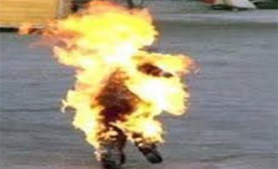زوجة مصرية تشعل النيران في زوجها بسبب الإنترنت