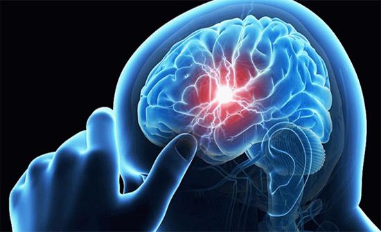 خطر صحي على طوال القامة اكثر عرضه لإصابتهم بالسكتة الدماغية