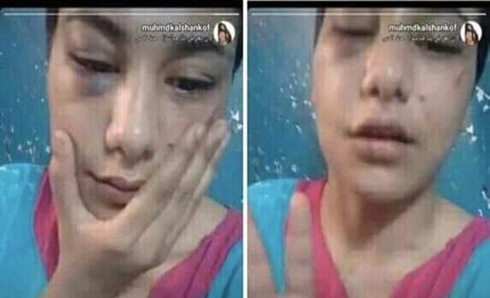 """فيديو وصور : استدراج واعتداء على إحدى مشاهير الـ """" تيك توك """""""