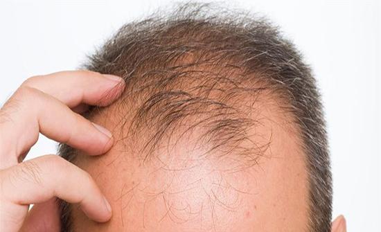 ابتكار جهاز جديد يقضي على الصلع و يعمل على  تحفيز نمو الشعر