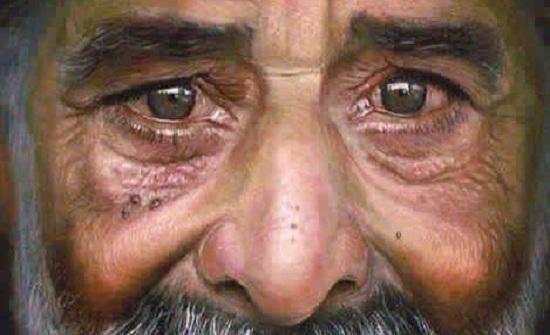 الأردن : 11 اعتداء جنسيا على كبار السن العام الماضي