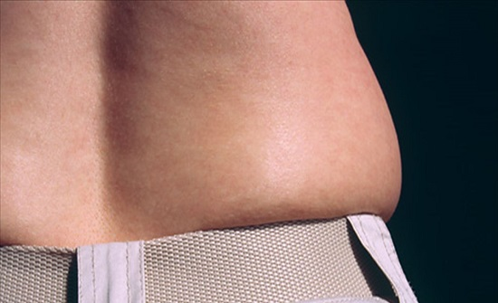 أسباب تراكم  الدهون في منطقة البطن
