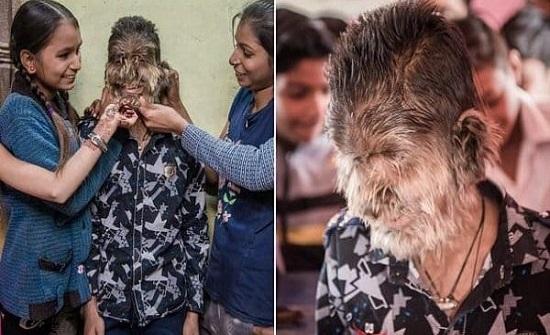حقيقة تحول أطفال في إسبانيا إلى مستذئبين.. تفاصيل مرعبة