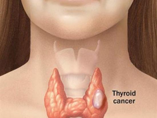 (بحة الصوت) مؤشر مهم لمرض السرطان.. تعرف على التفاصيل
