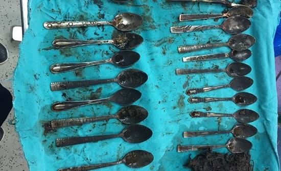استخراج 24 ملعقة وشوكة من معدة مريض بمصر (شاهد)