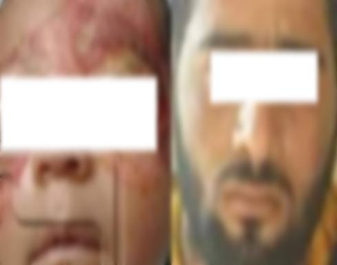 أب يكسر فخذ أبنته ويصيبها بنزيف في المخ  في مصر - تفاصيل