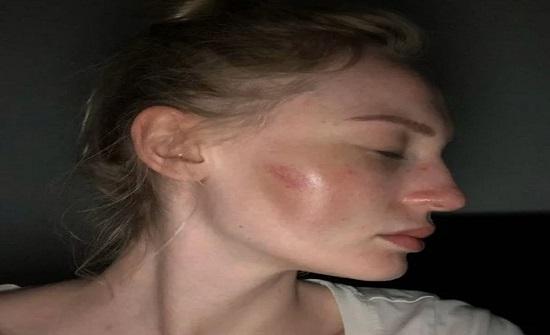 حسناء بلجيكية تنشر صورها بعد تشويه وجهها على يد خطيبها السابق