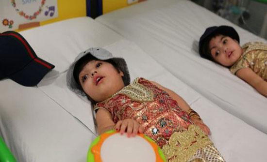 55 ساعة وأكثر من 100 طبيب وممرض.. عملية معقدة لفصل توأم باكستاني