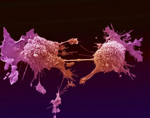 فريق بحثي أردني يكتشف طفرات جينية لسرطان الثدي والمبيض