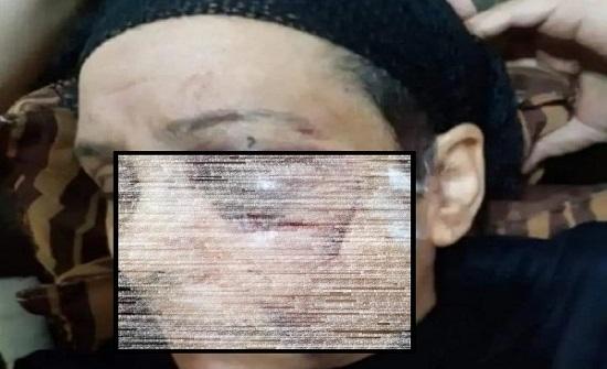 مصر : 14 غرزة في عينها وكسر في العظام ... الام المعتدى عليها من ابنها تروي التفاصيل