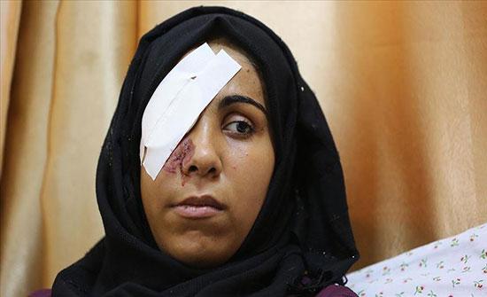 شابة من غزة تفقد عينها برصاصة إسرائيلية
