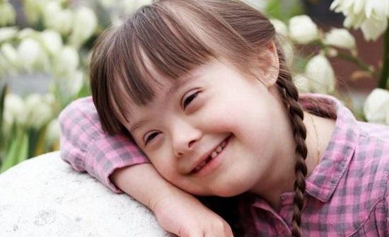 المصابون بمتلازمة داون أكثر عرضة 10 مرات للوفاة بكورونا