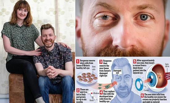 بعلاج الخلايا الجذعية.. رجل بريطاني يستعيد بصره بعد 26 عامًا (فيديو وصور)