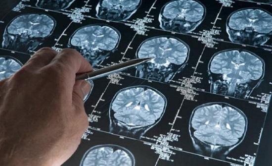 اكتشاف مذهل يحمل الأمل لعلاج مرض لا شفاء منه