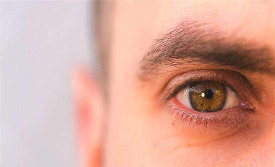 أسباب الحكة في زوايا العين وعلاجها