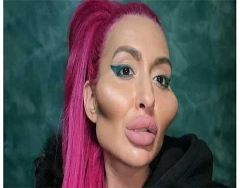 شاهد.. كيف تبدو «صاحبة أكبر خدود في العالم» قبل وبعد عمليات التجميل