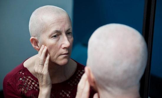 ابتكار عقار يحمي مرضى السرطان من تساقط الشعر أثناء العلاج بالكيماوي