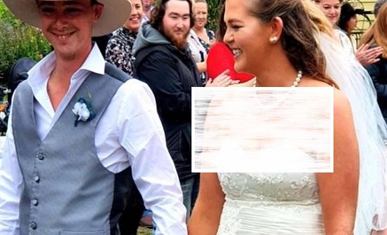 احترق وجهها بالكامل .. استرالية تطلب الطلاق من زوجها