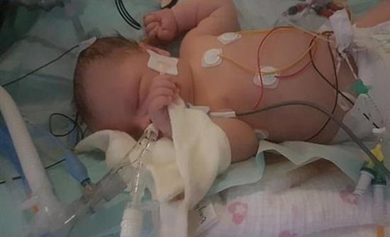 معجزة نادرة الحدوث.. مولودة تتوقف نصف ساعة عن التنفس وتعود بعدها للحياة