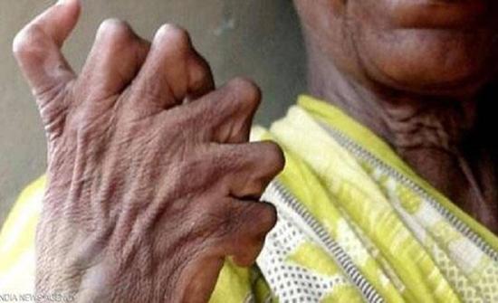 بالفيديو : معاناة سيدة هندية تملك 31 إصبع منذ ولادتها