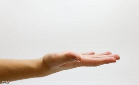 احذر  البقع البنية على الجسم قد تعني الاصابة بالسكري