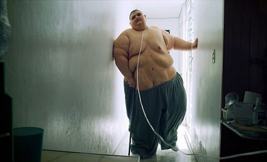 بعد فقدان 330 كيلوغرامًا.. أسمن رجل في العالم يقف على قدميه للمرة الأولى (صور)