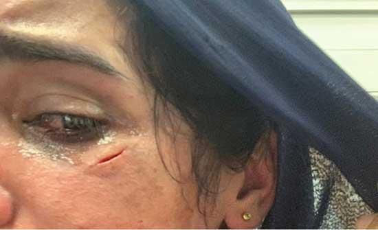 صحفيو الضفة: قمعتنا السلطة بوحشية ونطالب بإنصافنا (صور)