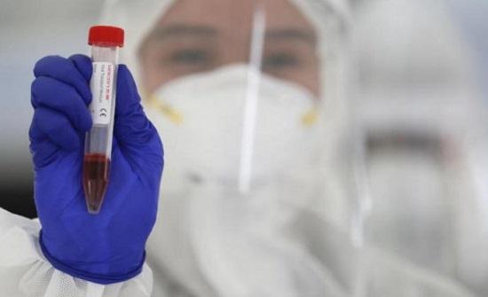 6302 اصابة جديدة بفيروس كورونا في الاردن