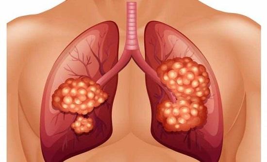 5 علامات تدل على الإصابة بسرطان الرئة