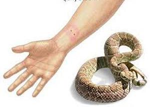 لدغــات الأفــاعـي والعقـارب ولسعات الحشرات .... العلاج . الوقاية