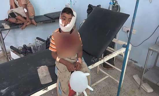 فيديو.. إصابة طفل برصاص قناص حوثي بالحديدة