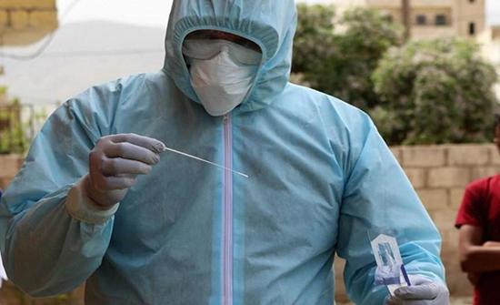 اصابات بفيروس كورونا عربيا وعالميا الثلاثاء