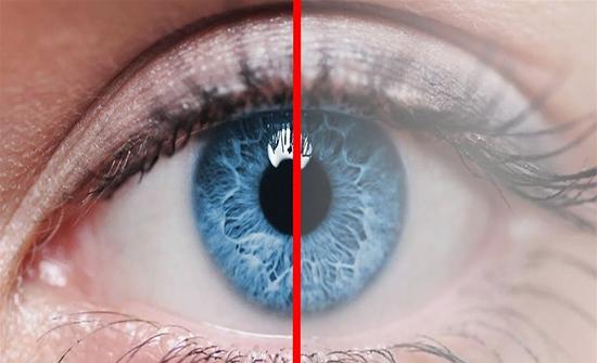 احذروا المياه البيضاء على العين تسبب فقدان النظر