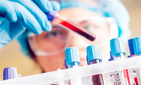 فحص جديد يتنبأ بسرطان «البروستاتا».. بقطرة دم واحدة