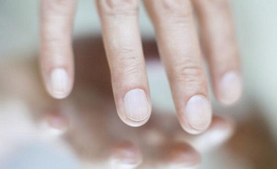 تغيرات في الأظافر تشير للإصابة بالكبد الدهني