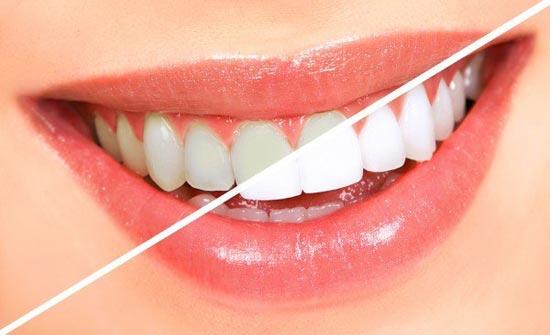 لتبييض أسنانكم.. إليكم هذه الطرق الطبيعية!