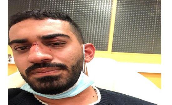 اعتداء عنصري على شاب أردني وشقيقته في فرنسا