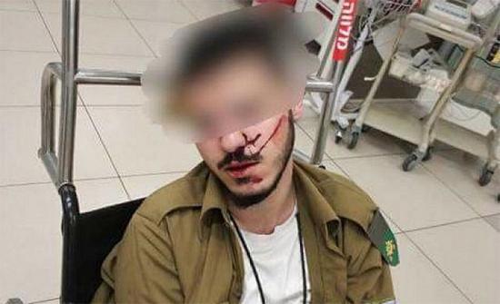 شجار بين جنود اسرائيليين من لواء جبعاتي يوقع 21 جريحا