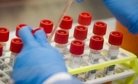بريطانيا: 445 وفاة و57725 إصابة بفيروس كورونا