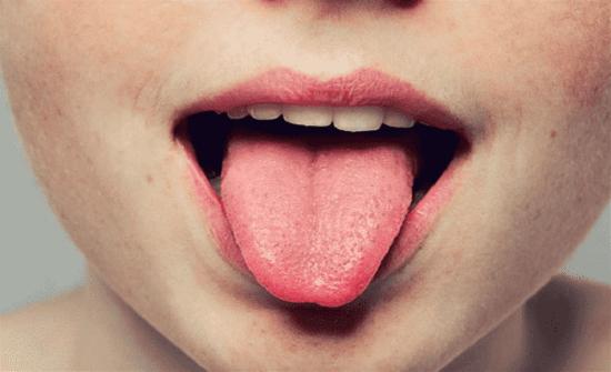5 ألوان لـ اللسان تكشف لك نوع مرضك