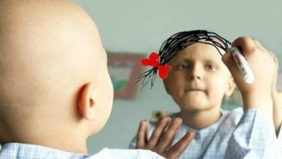 نسبة شفاء الأطفال في مركز الحسين للسرطان تصل إلى ٨٠٪