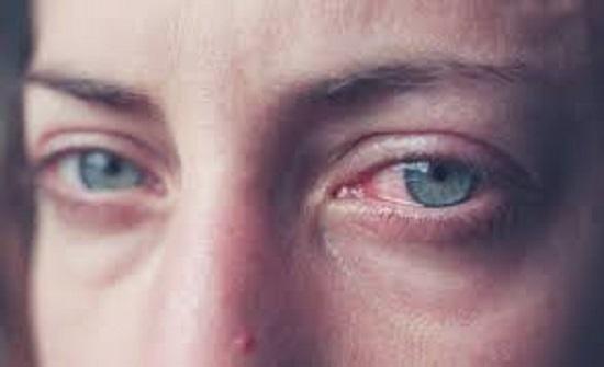 جرش : رجل يقتلع عيني زوجته أمام أطفاله