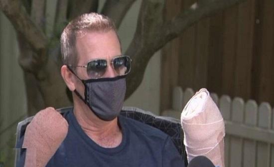 رجل يحذر من مخاطر كورونا : تسبب في بتر أصابع يدي